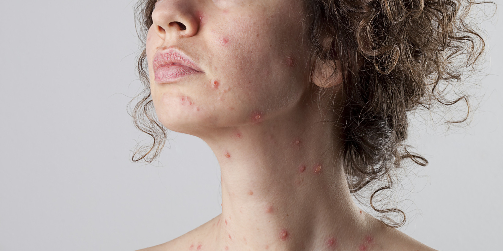 Is It Shingles Virus or Something Else? Everyday Health