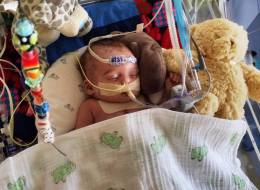 Facebook Rejects Photo Of Hospitalized Baby, Calls It 'Too Graphic'