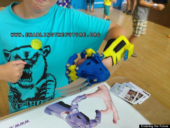 wolverine prosthetic