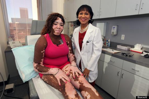 Skin Pigmentation Disorders | Hyperpigmentation | MedlinePlus