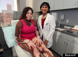 Woman With Vitiligo Undergoes State Of The Art Treatment To Reverse The Condition