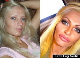 Model Spends Thousands On Plastic Surgery To Look Like A Sex Doll, Says She's Happy And Confident