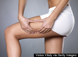 The Major Myth About Cellulite That Nearly Everyone Believes