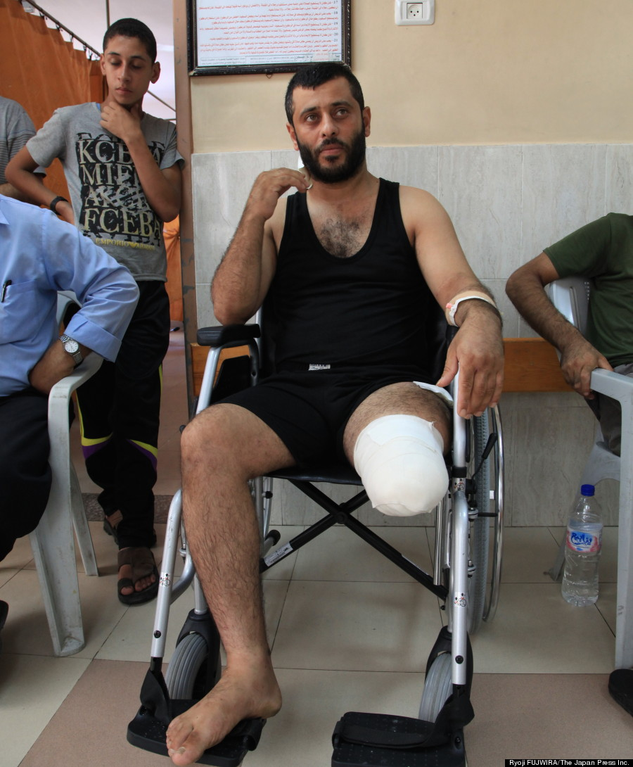 イスラエル軍機甲部隊の戦車による砲撃で左足のひざから下を失った男性