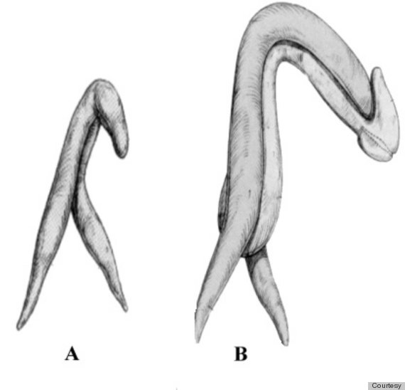 Clinical photographs of the female clitoris