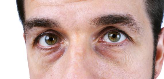 dark circles eyes