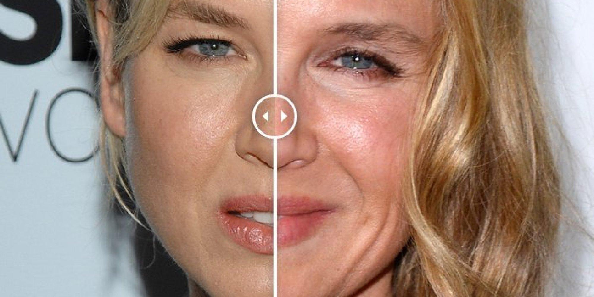 El antes y el después de Renee Zellweger (FOTOS, GIF)