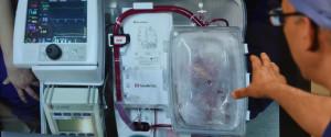 HEART TRANSPLANT SYDNEY