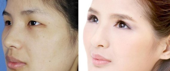 PLASTIC SURGERY CHINA