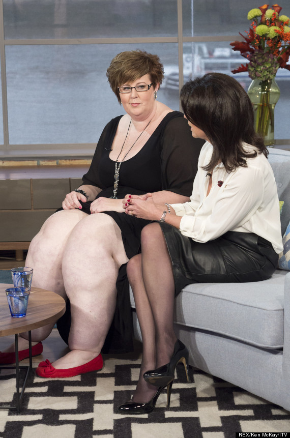 Woman With Incurable 10 Stone Leg Condition Tells Of