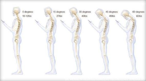 Mal di schiena da smartphone: piegare la testa sul..