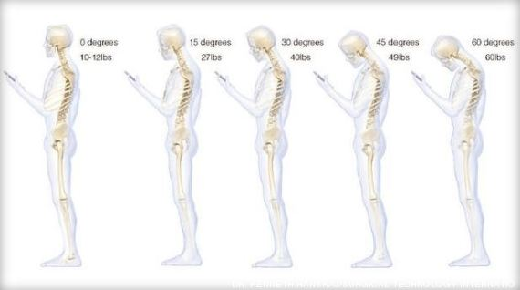 Siccome la testa a osteochondrosis ferisce sintomi di osteochondrosis