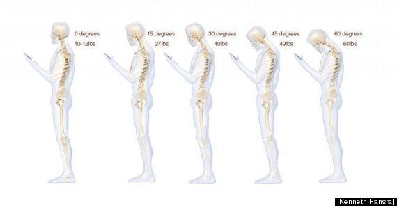 texting posture