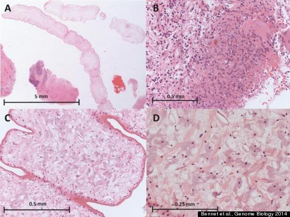 worm brain tissue
