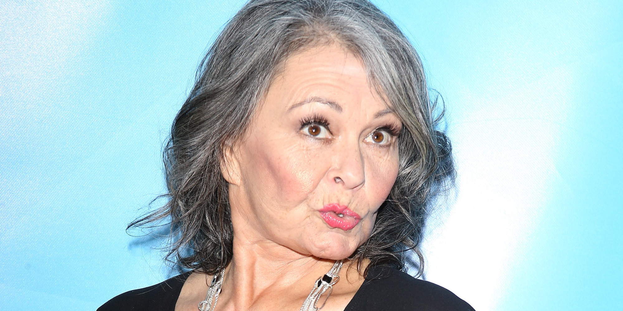 Roseanne Barr Posts Photo Of Bloodied Face, Jokes About