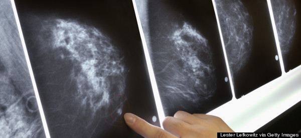 This Drug Can Protect Women With a High Breast Cancer Risk For 20 Years