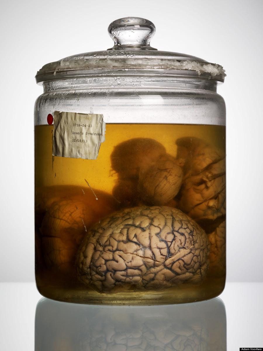 texas brains