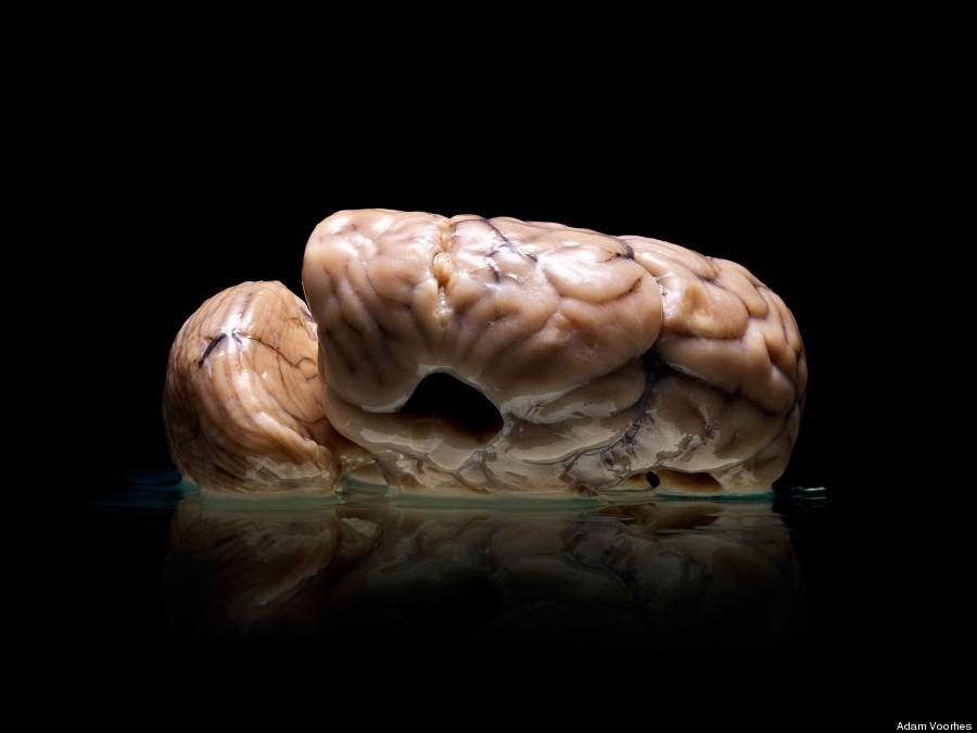 texas brain