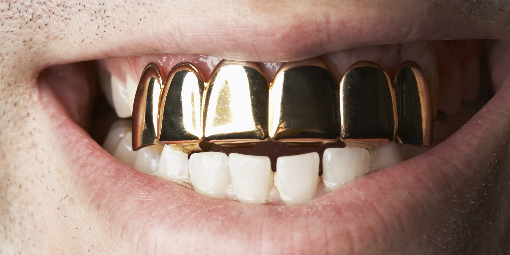 A Brief History Of Grillz: 4500 Years Of Style | HuffPost