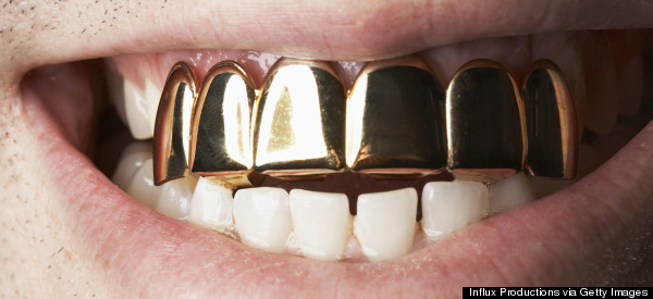 Salvation Army Concerned That Gold Tooth Donation Was Unintentional