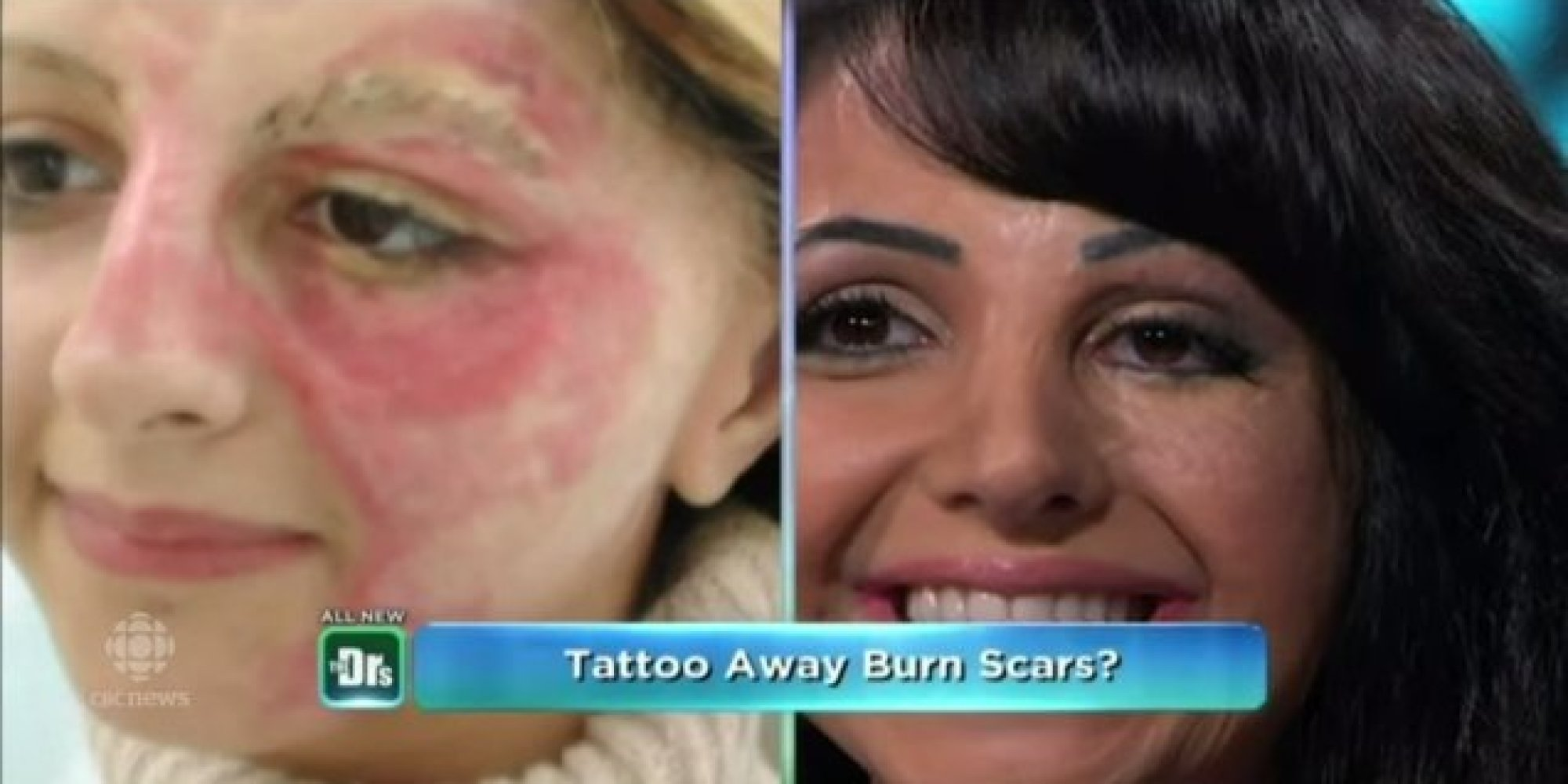 Woman Tattoos Her Own Face To Cover Scars, Starts Business To Help ...