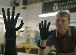 At 14, He Vowed To Invent An Affordable Prosthetic Limb. 5 Years Later, He's Succeeded.