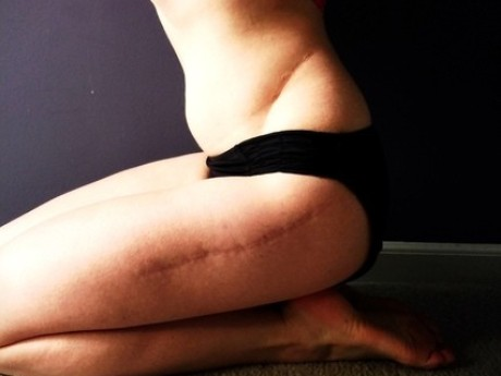 How My Scars Changed The Way I See Beauty