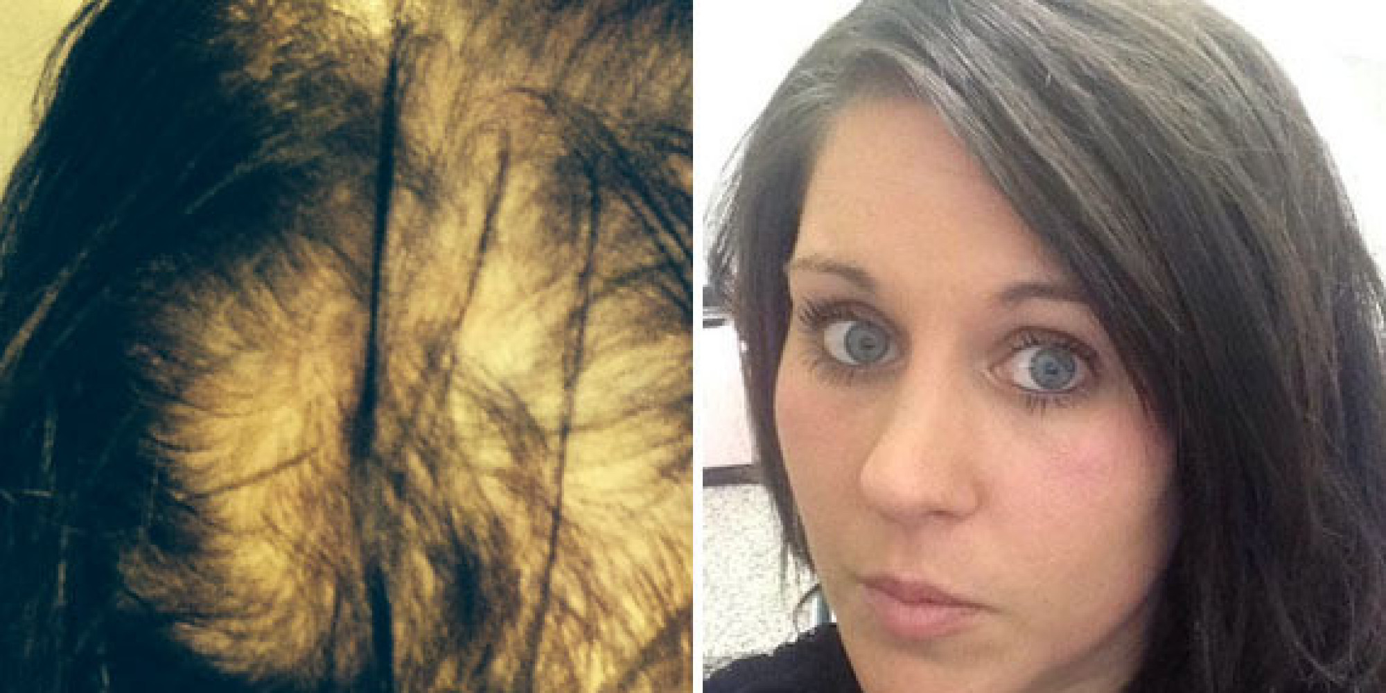 Woman Who Suffered Severe Hair Loss Undergoes ...
