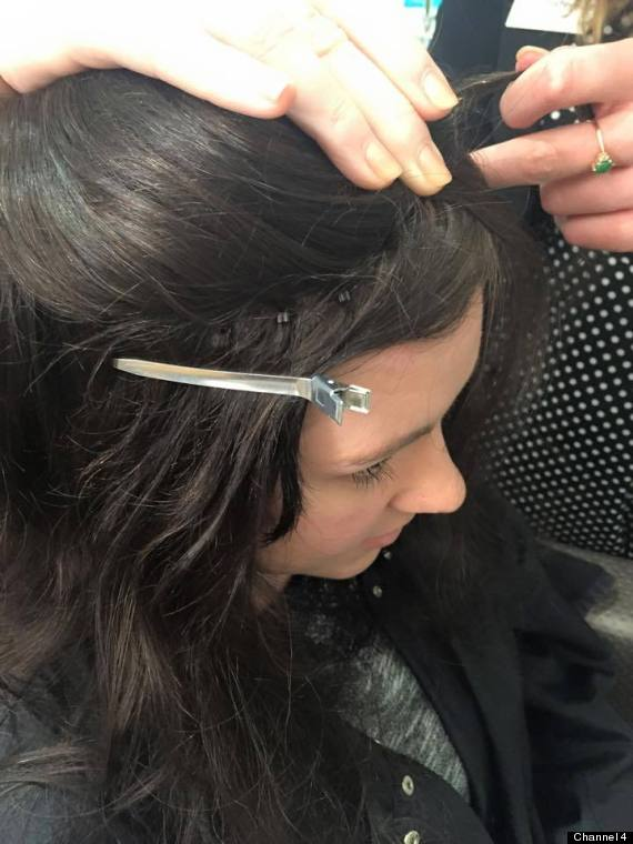 hairloss process