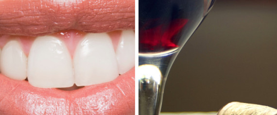 Wine Teeth Stain