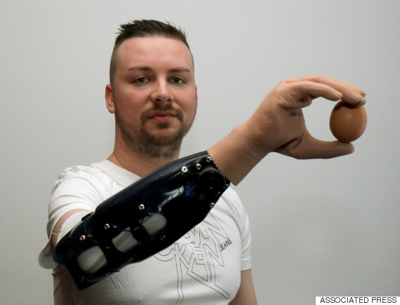 Meet The First Men To Get Reconstructed Bionic Hands After Amputation