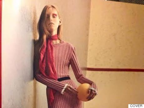 Magazine Apologises For Image Of 'Unhealthily Thin' 16-Year-Old