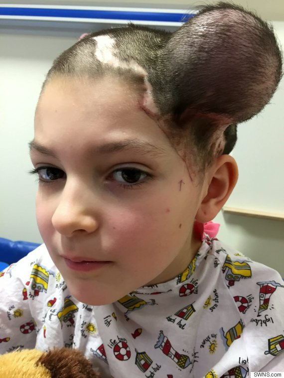 Nine Year Old Jessica Brett Receives Balloon Treatment