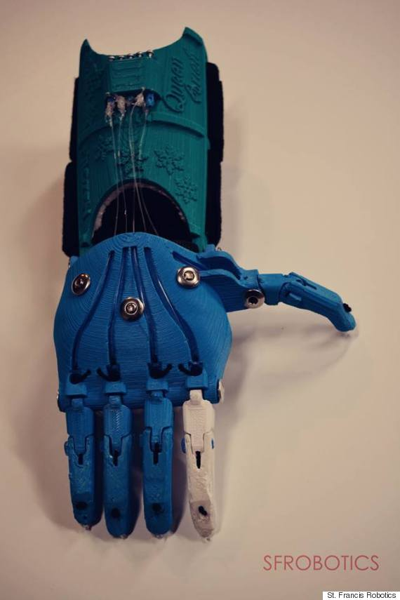 deer creek prosthetic hand