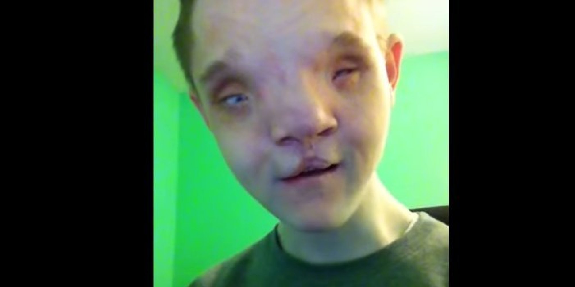 Young Man With Severe Disabilities Teaches Us Lesson In