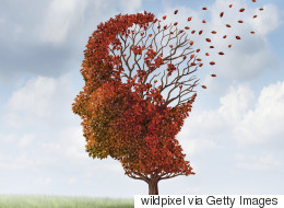 Stop Perceiving People With Alzheimer's As 'Idiots'