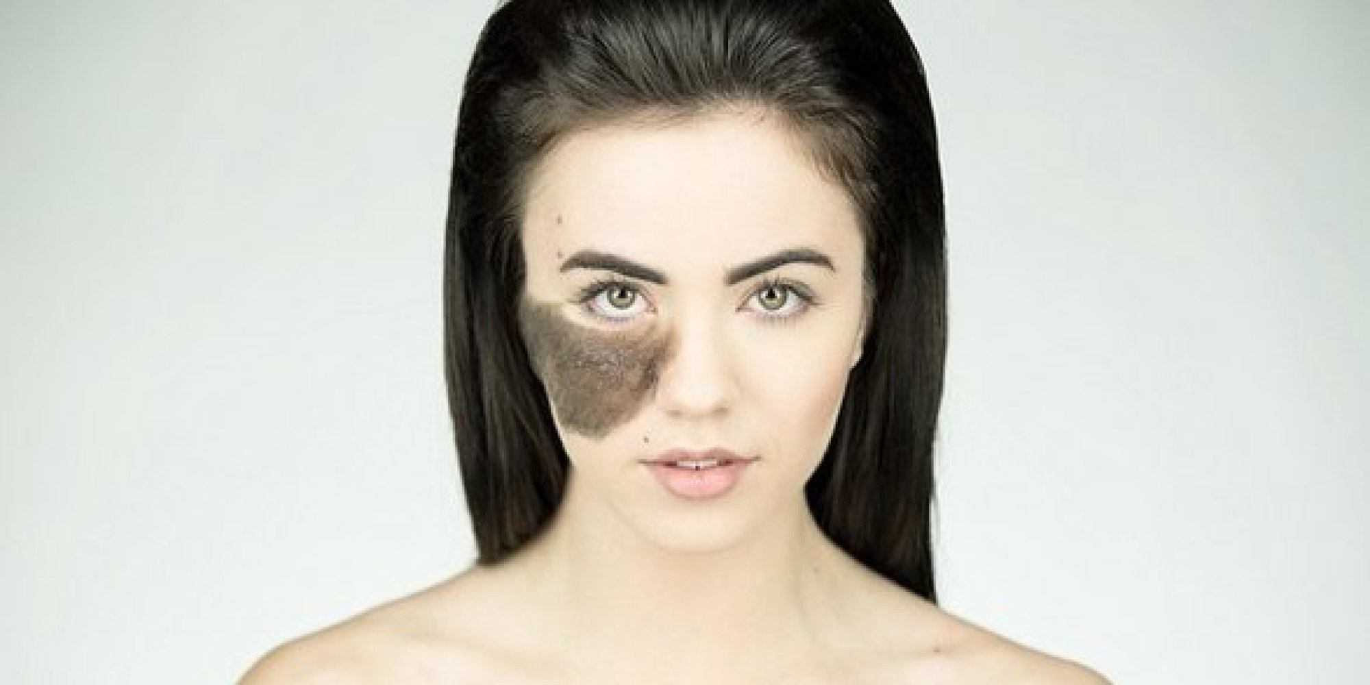 Mongolian Birthmarks Pictures, Removal, Origin, Meaning ...