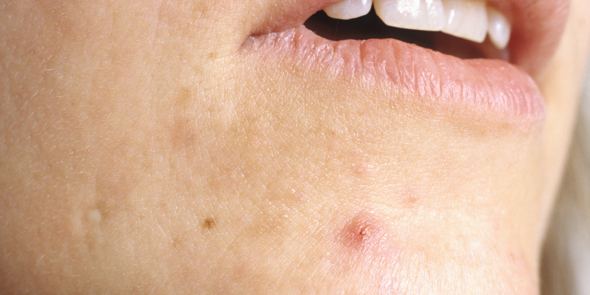 Everything You Ever Wanted To Know About Cystic Acne