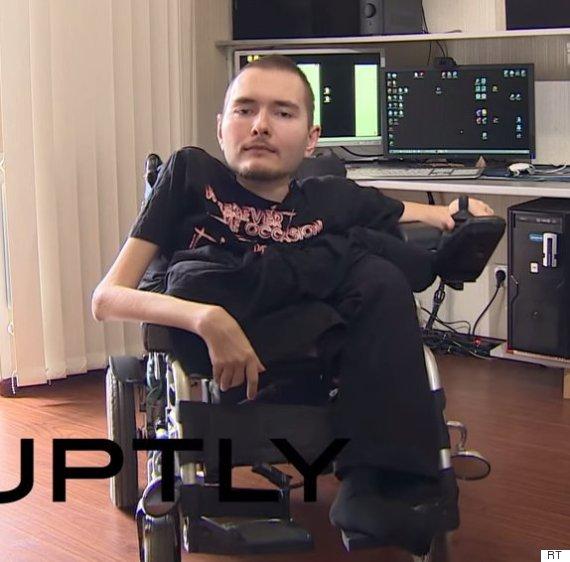 Sergio Canavero Head Transplant >> Head Transplant: Russian Man Valery Spiridinov Hopes To Be First To Receive Controversial Surgery