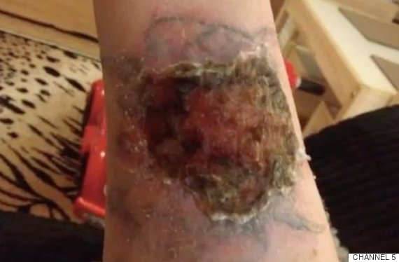 Tattoo Removal: Woman Pours Pure Acid On Arm In Attempt To Remove Ex ...