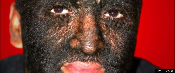 werewolf syndrome. Cure #39;Werewolf Syndrome#39;