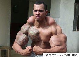 Este hombre quiso tener brazos de 'Hulk', pero todo salió terriblemente mal