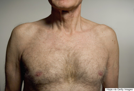 man chest middle aged