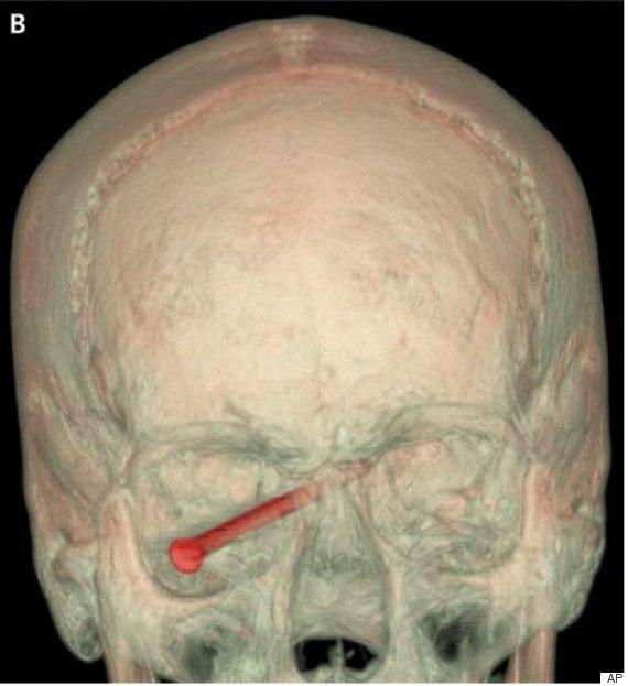 nail in eye 2
