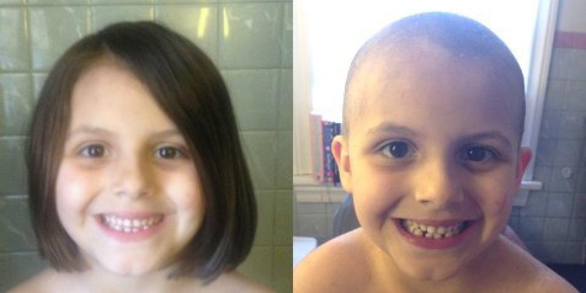 Warum sie sich den Kopf rasierte