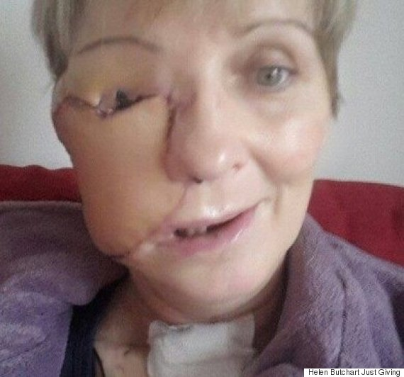 Brave Woman Reveals Devastating Effects Sinus Cancer Had
