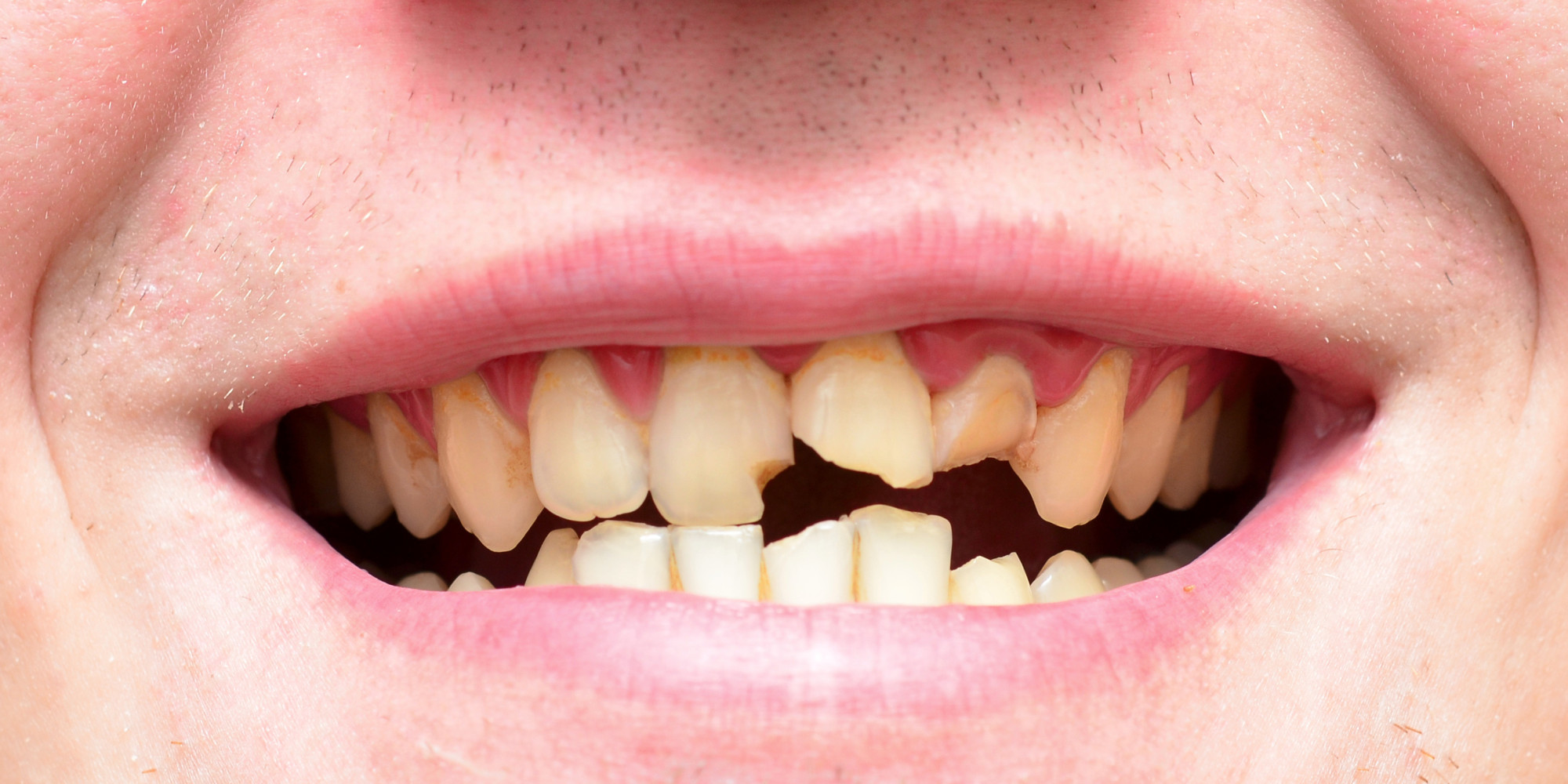 How did the rumour that all British people have bad teeth start?
