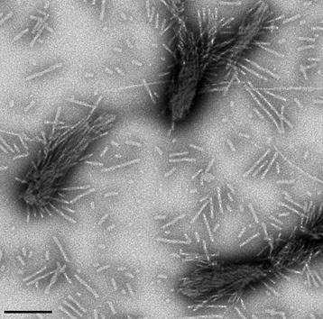 parkinson cells