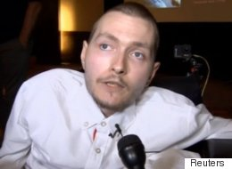 The World's First Head Transplant Surgery Just Got One Step Closer To Happening
