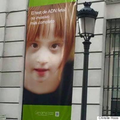 down syndrome photo